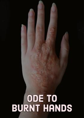 Ode To Burnt Hands